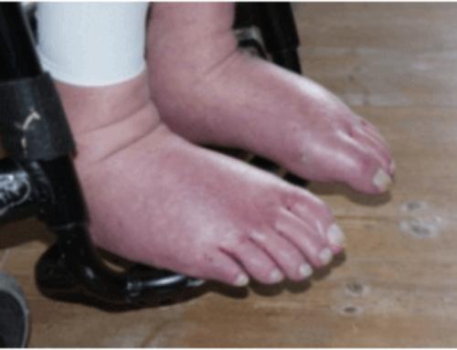 Vand i benene blev cyklet væk – det er lettere end du måske tror