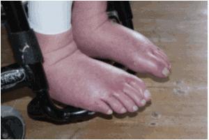 Hævede fødder kørestol